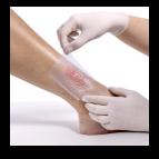 Tratamento de úlceras nas pernas